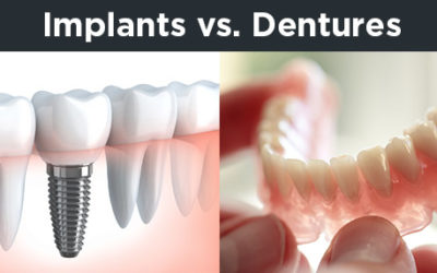 Implants v Dentures