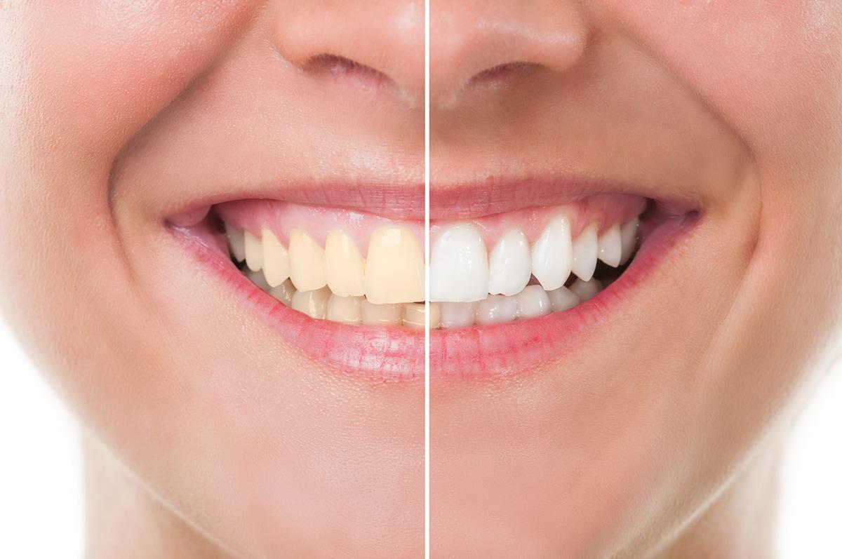 cosmetic dentist crewe